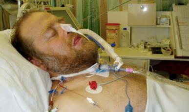 ICU patient CASE